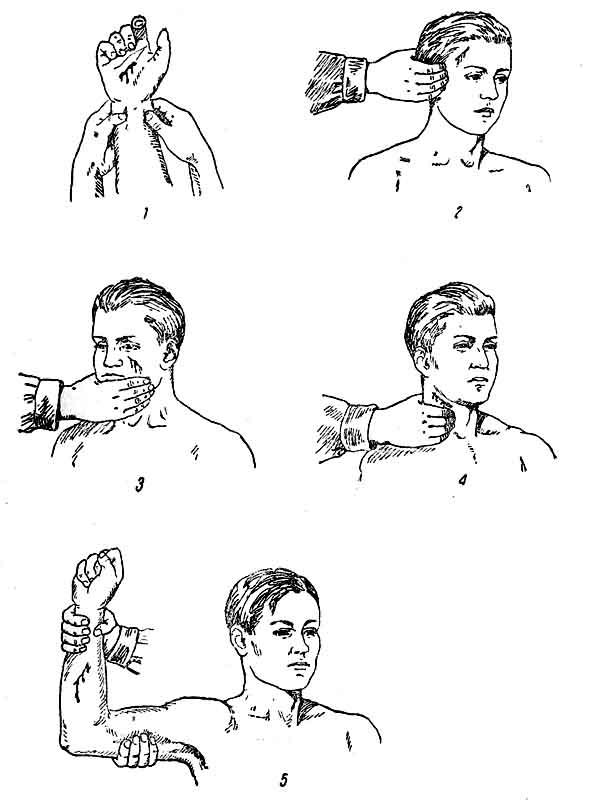 Рис. 31. Места пальцевого прижатия артерий