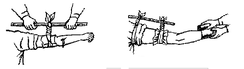 Рис. 34. Наложение жгута